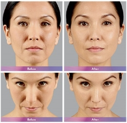 Voluma Before and After 4